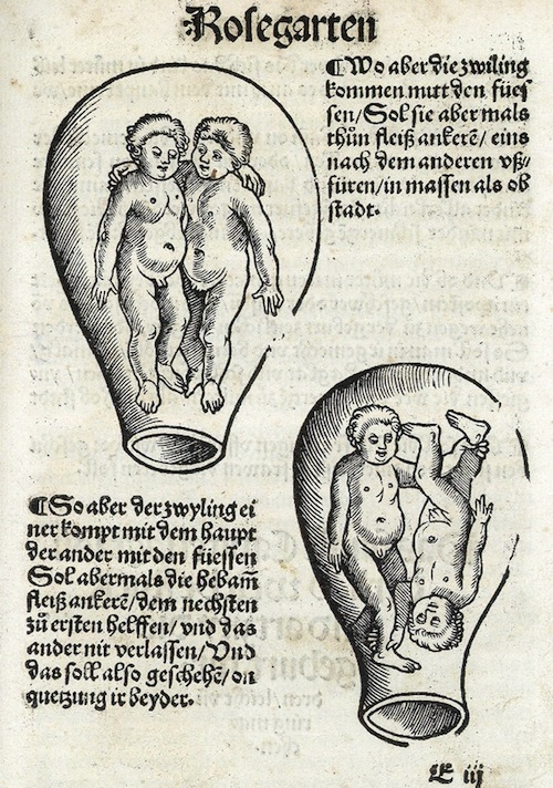 Drawing by Eucharius Rosslin, c. 1513, Zurich, illustrates how Rosslin thought some twins were positioned in the womb. Maybe that's how Jacob and Esau were positioned?