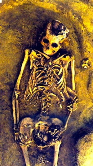Woman in Siberia's c. 7,000 year old bones with twins still in her uterus