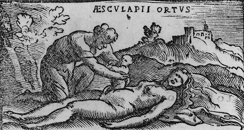 Birth of Asclepius—Woodcut from the 1549 edition of Alessandro Beneditti's De Re Medica