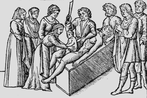 Birth of Julius Caesar—1506 Medieval woodcut